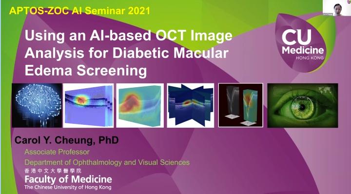 Carol Cheung – Using an AI-Based OCT Image Analysis for Diabetic Macular Edema Screening