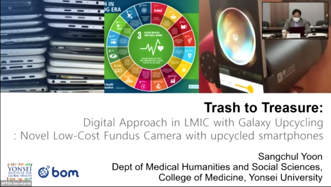 Sangchul Yoon – Trash to Treasure Digital Approach in LMIC with Galaxy Upcycling – Novel Low Cost Fundus Camera with Upcycled Smartphone