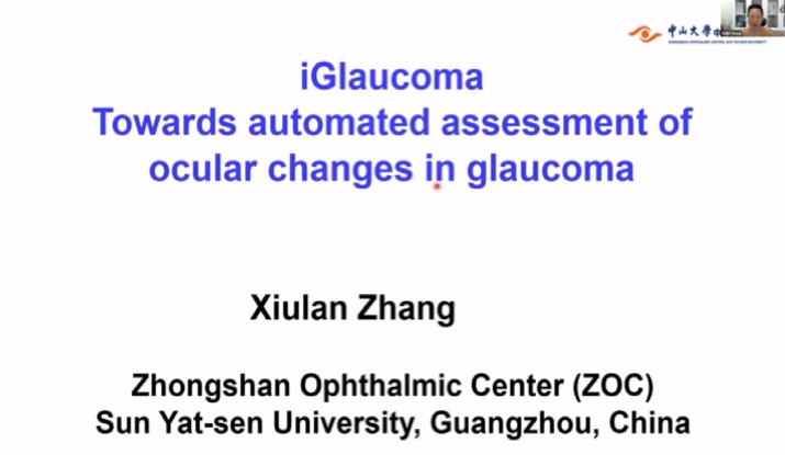 Xiulan Zhang – iGlaucoma Towards Automated Assessment of Ocular Changes in Glaucoma