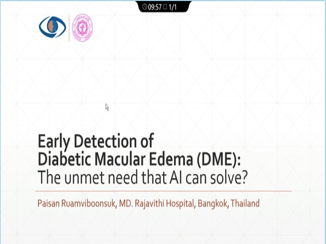 Paisan Ruamviboonsuk – Early Detection of DME: An Unmet Need that AI can Solve?
